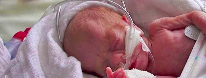 Baby kommen viel zu früh zur Welt