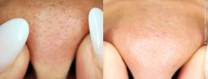 Mitesser und große Poren: Tipps und Tricks