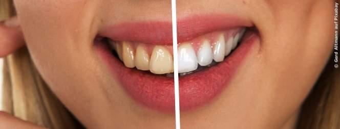 So einfach entfernst du Zahnbelag ohne zum Zahnarzt zu gehen