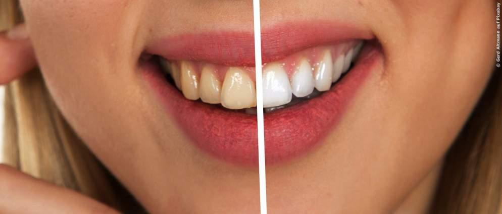 Anleitung: Weißere Zähne in zwei Minuten